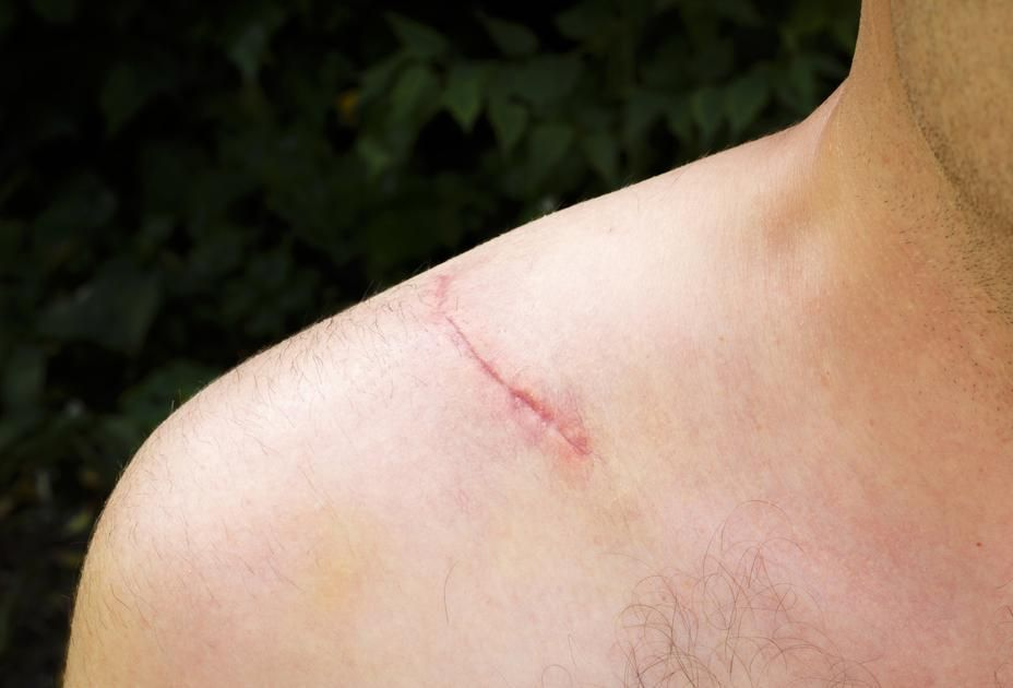 How Long Does It Take For A Scar To Heal After Hip Surgery