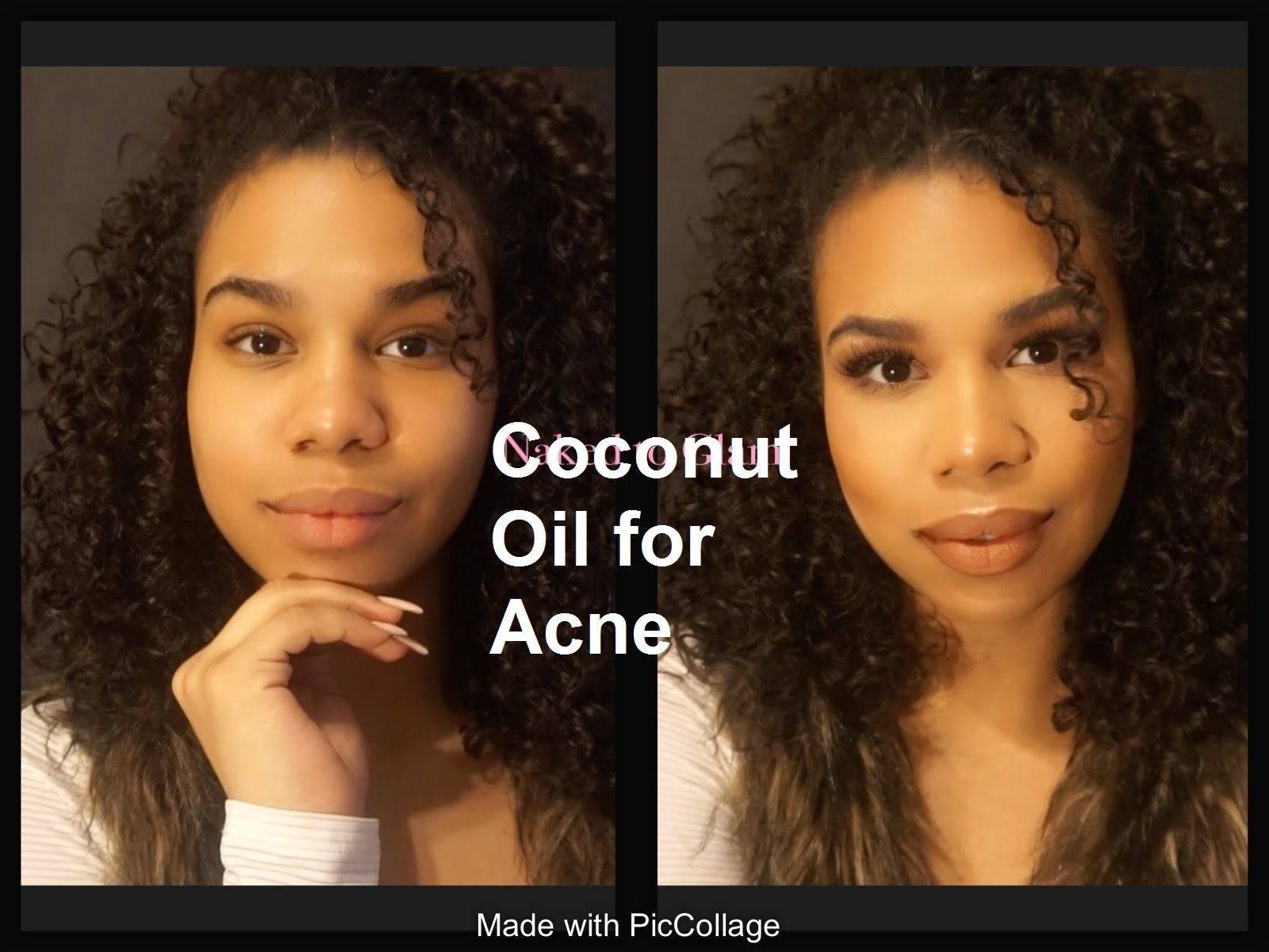 how to use coconut oil for acne | how does coconut oil help your ac