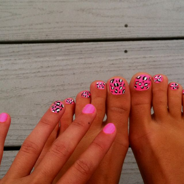 Did matching finger and toe nails