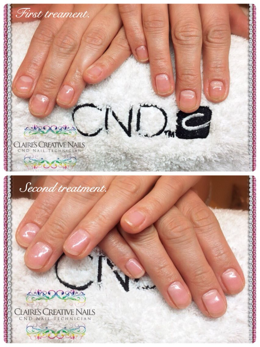 IBX to repair damaged nails from biting. Followed by CND Brisa Lite ...