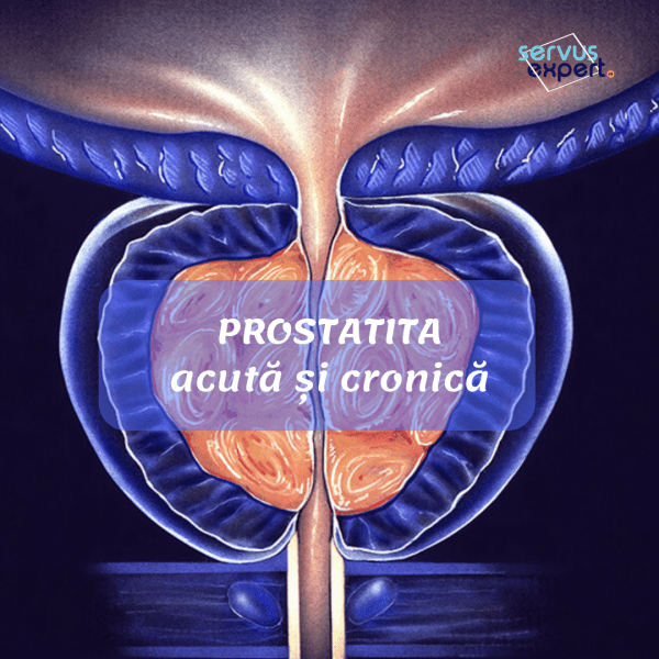 varicoză și prostatită unde să examinăm varicosele