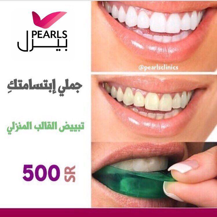 جملي إبتسامتك تبييض القالب المنزلي 500 ريال Dental Pearls