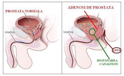 adenomul de prostata tratament naturist