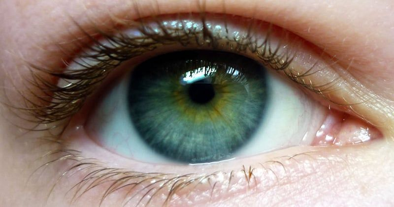 blue green central heterochromia… I think I have this ...