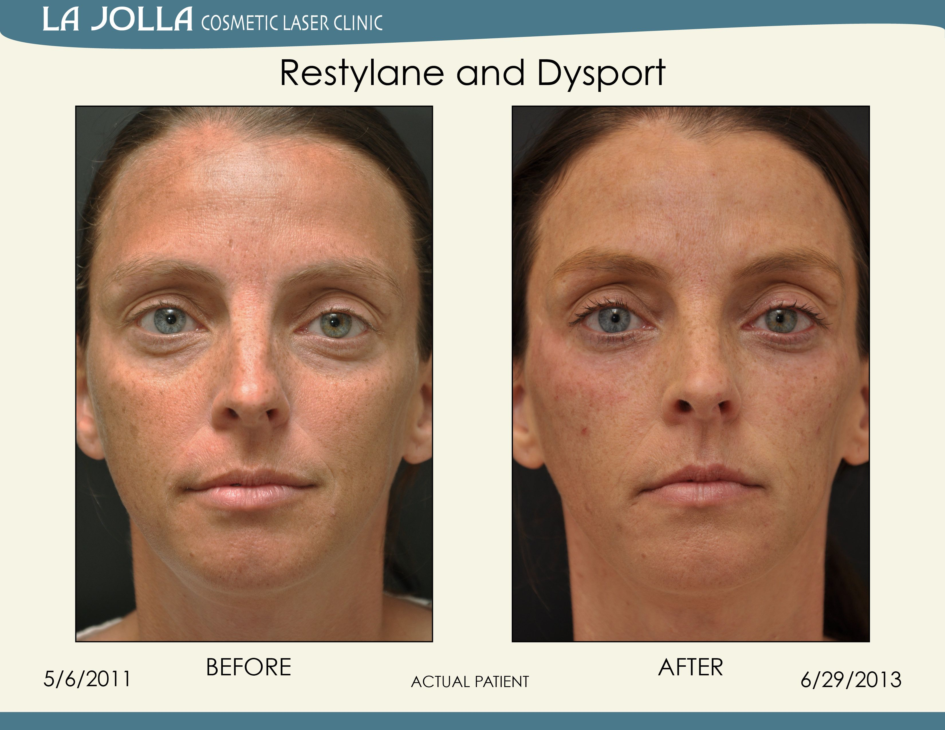 Patient treated with Restylane and Dysport at La Jolla