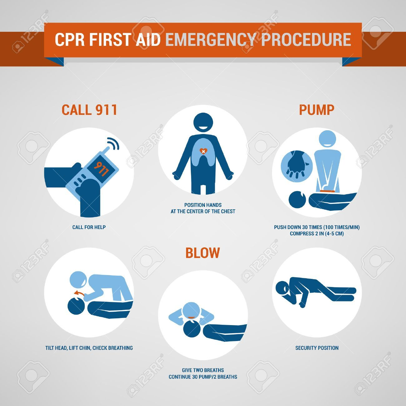 Cpr Full Form Is Cardiopulmonary Resuscitation Which Is An Emergency Life Saving Procedure It Consists Mainly Of Mouth Cpr First Aid Procedures Cpr Procedure