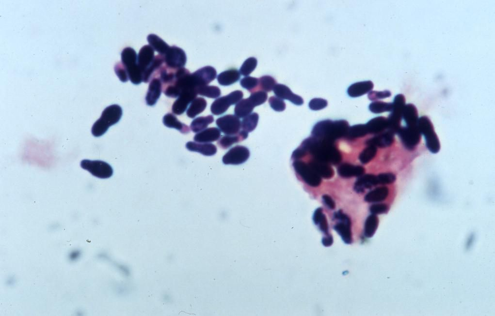 Yeast Malassezia Gram Stain Bacteria Pinterest