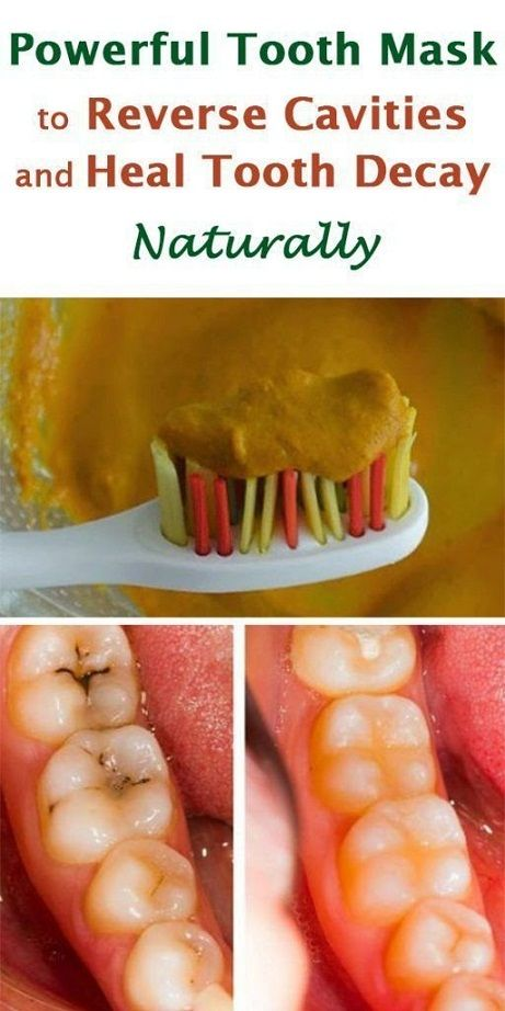 Powerful Tooth Mask To Reverse Cavities And Heal Tooth Decay Naturally Teeth Health Reverse Cavities Heal Cavities