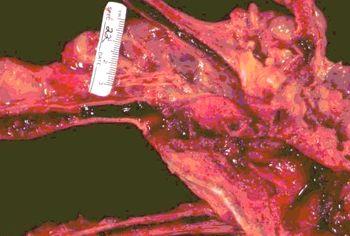 coagulos en la aorta