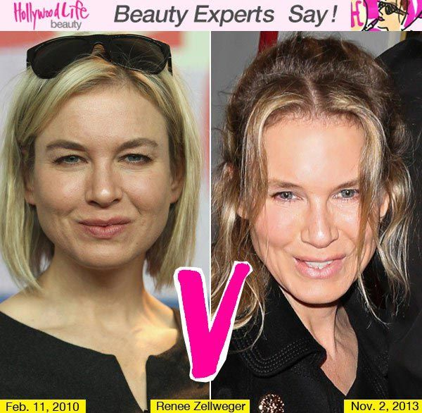Plastic Surgery Gone Wrong - lifeandstylemag.com