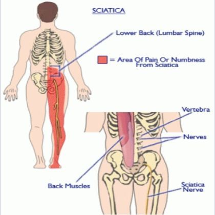 Natural Remedies For Arthritis In Back And Hips