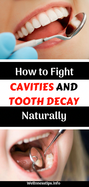 How to Fight Cavities and Tooth Decay Naturally  #cavities #toothdecay #dentalcare #homeremedies #health #healthy #healthcare #wellness #OralHealthCare
