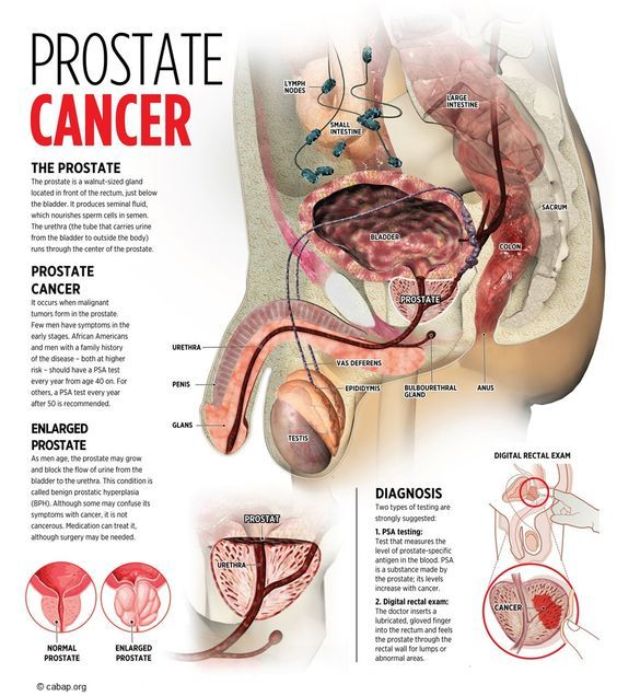 how to treat prostate cancer