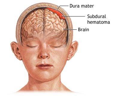 Facial blood accumulation