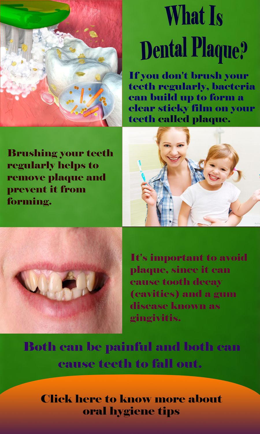 Pin on General Dentistry
