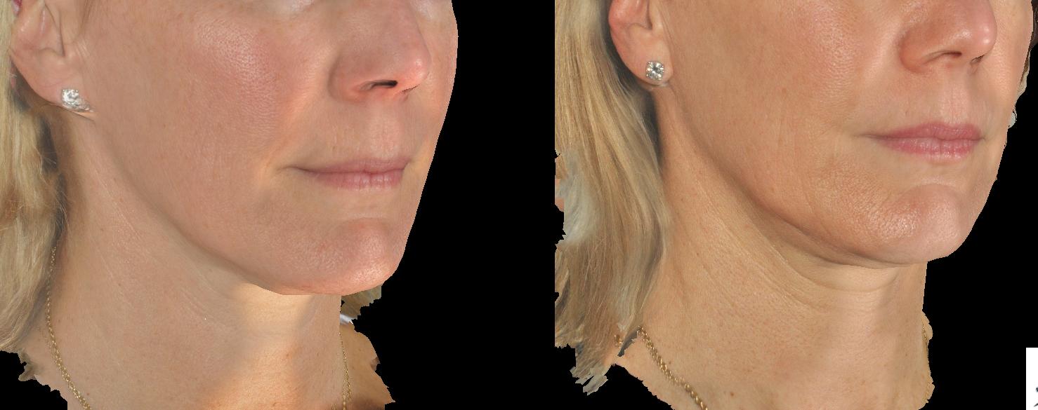 "Dr  Steve Weiner: ""FINALLY…A Radiofrequency (RF) Skin"