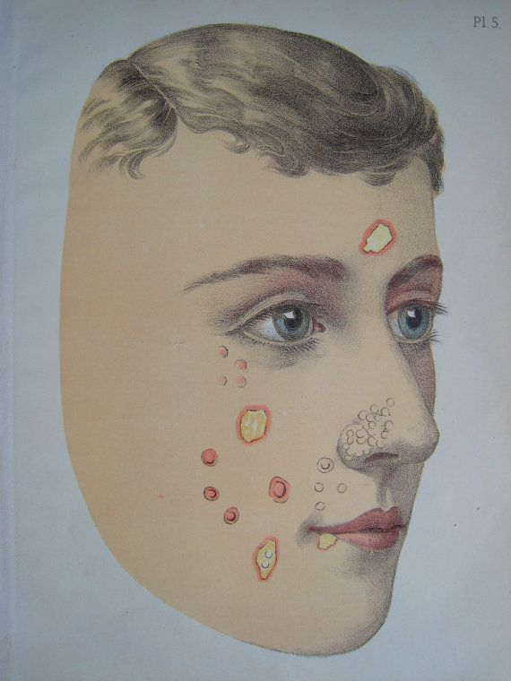 Victorian Medical Charts Facial Diseases via Etsy Victorian - medical charts