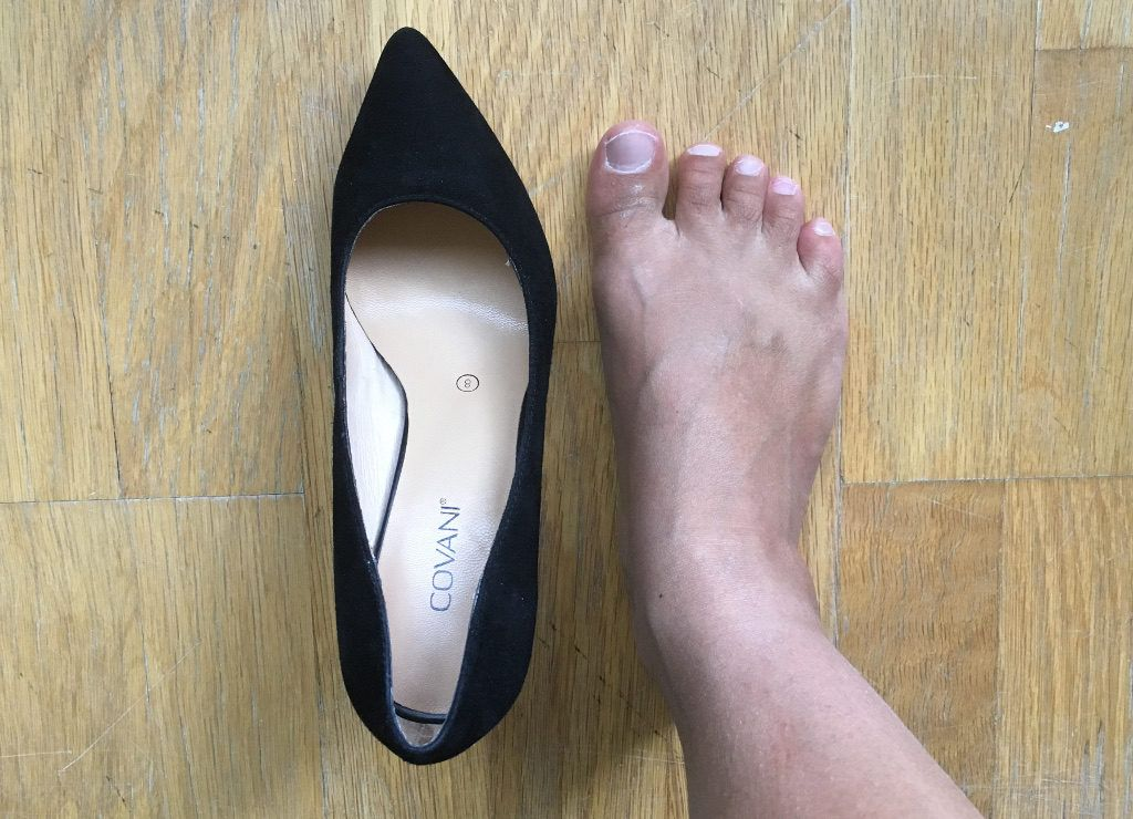 51404e1c1b43 How to stretch tight high heel shoes for wide feet on ferebres.com ...
