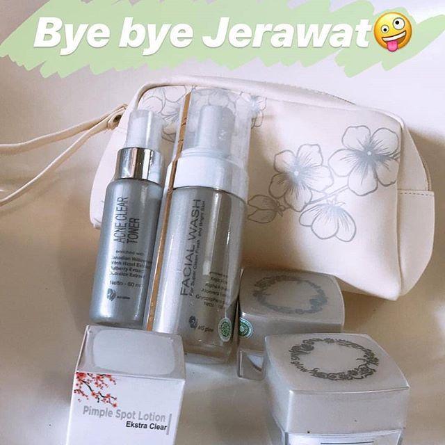 Review Daily Face Cream Natur E Untuk Jerawat