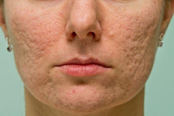 rode vlekjes na acne