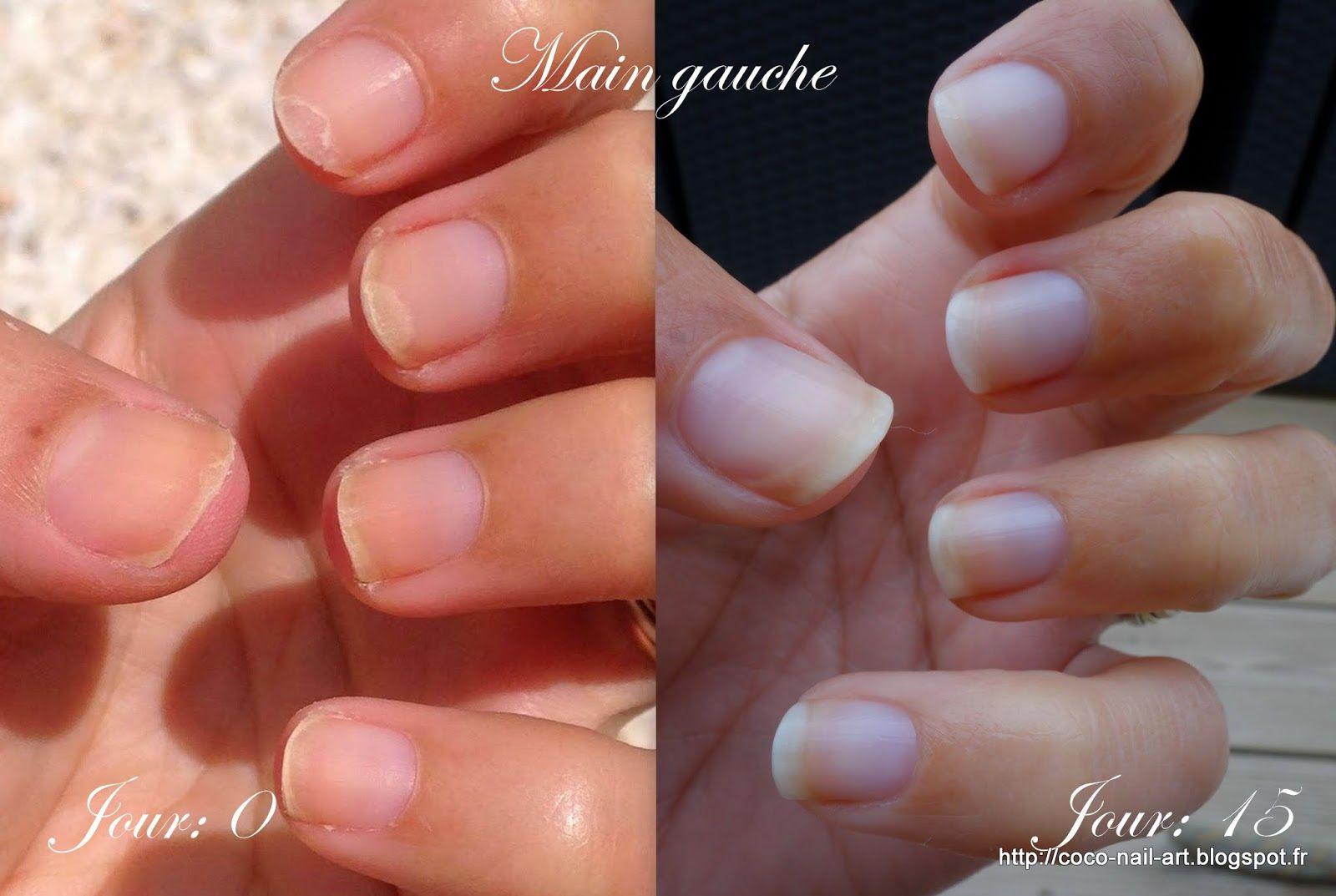 Cure 2 semaines Trind Nail Balsam-Nail Repair main gauche   Soins ...