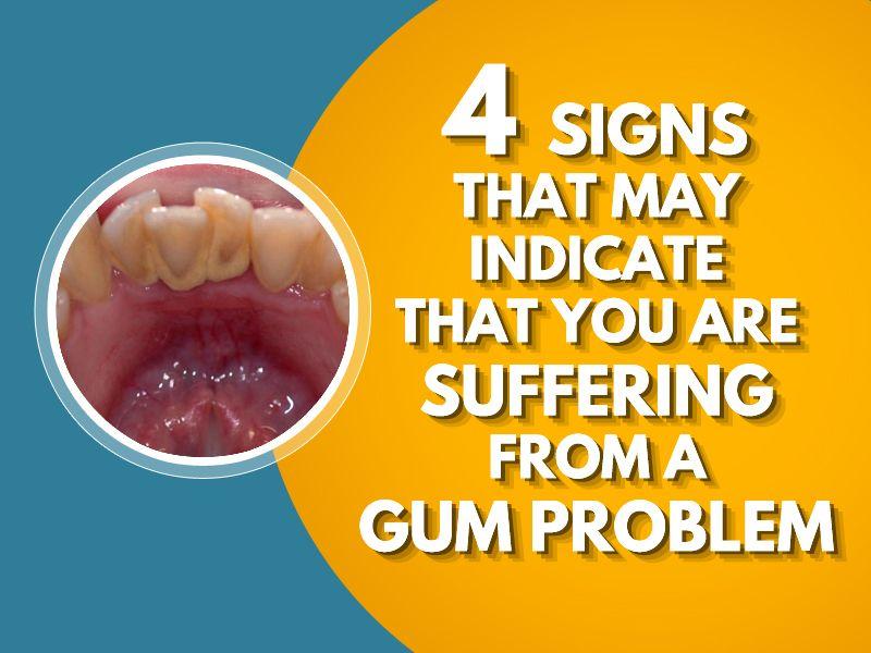 Pin on dental marketing