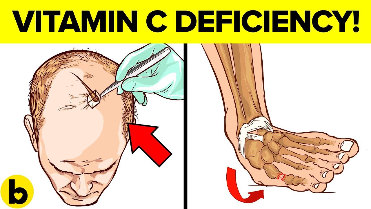 Vitamin C Deficiency Symptoms That Should Never Be Ignored ...