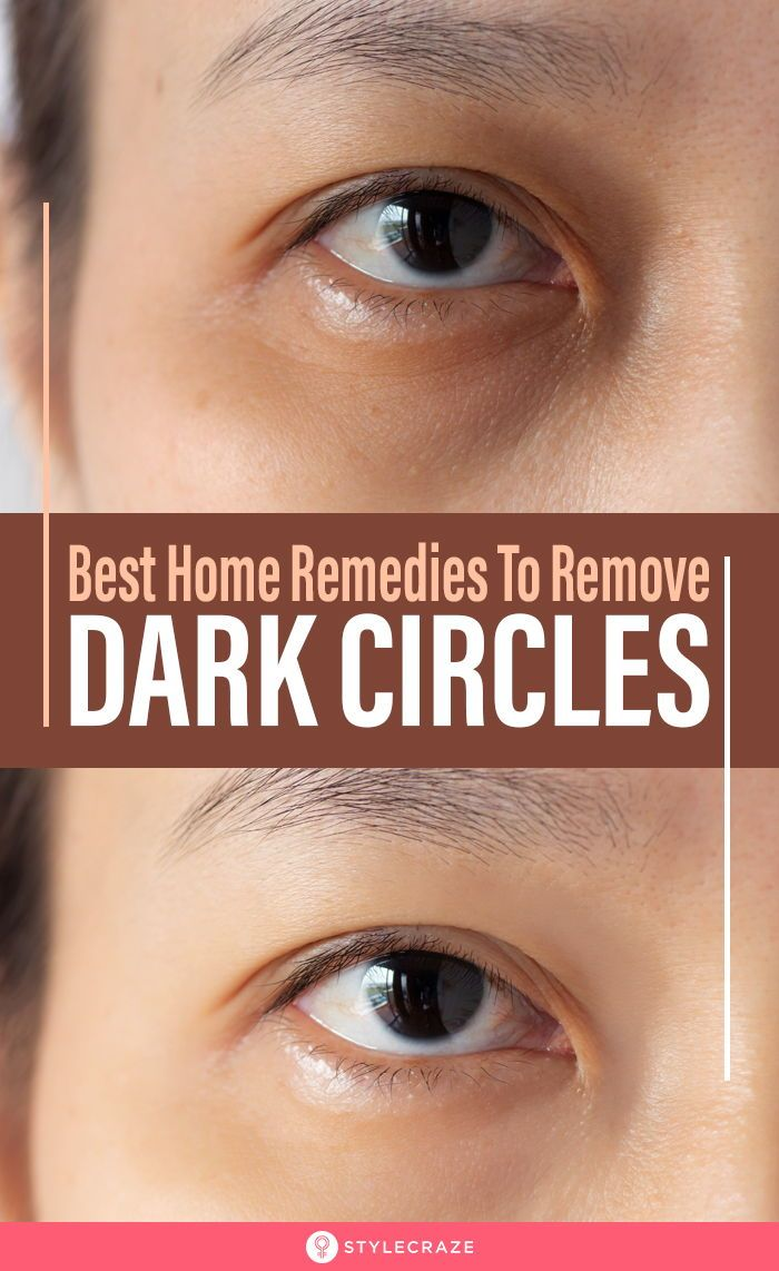 2d414dc77e535e850b733269b5ec71fc - How To Get Rid Of Dark Circles Under Your Arms