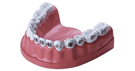 Zahnzusatzversicherung Dfv Zahnschutz In 2020 Zahnbehandlung Zahnzusatzversicherung Kieferorthopadie