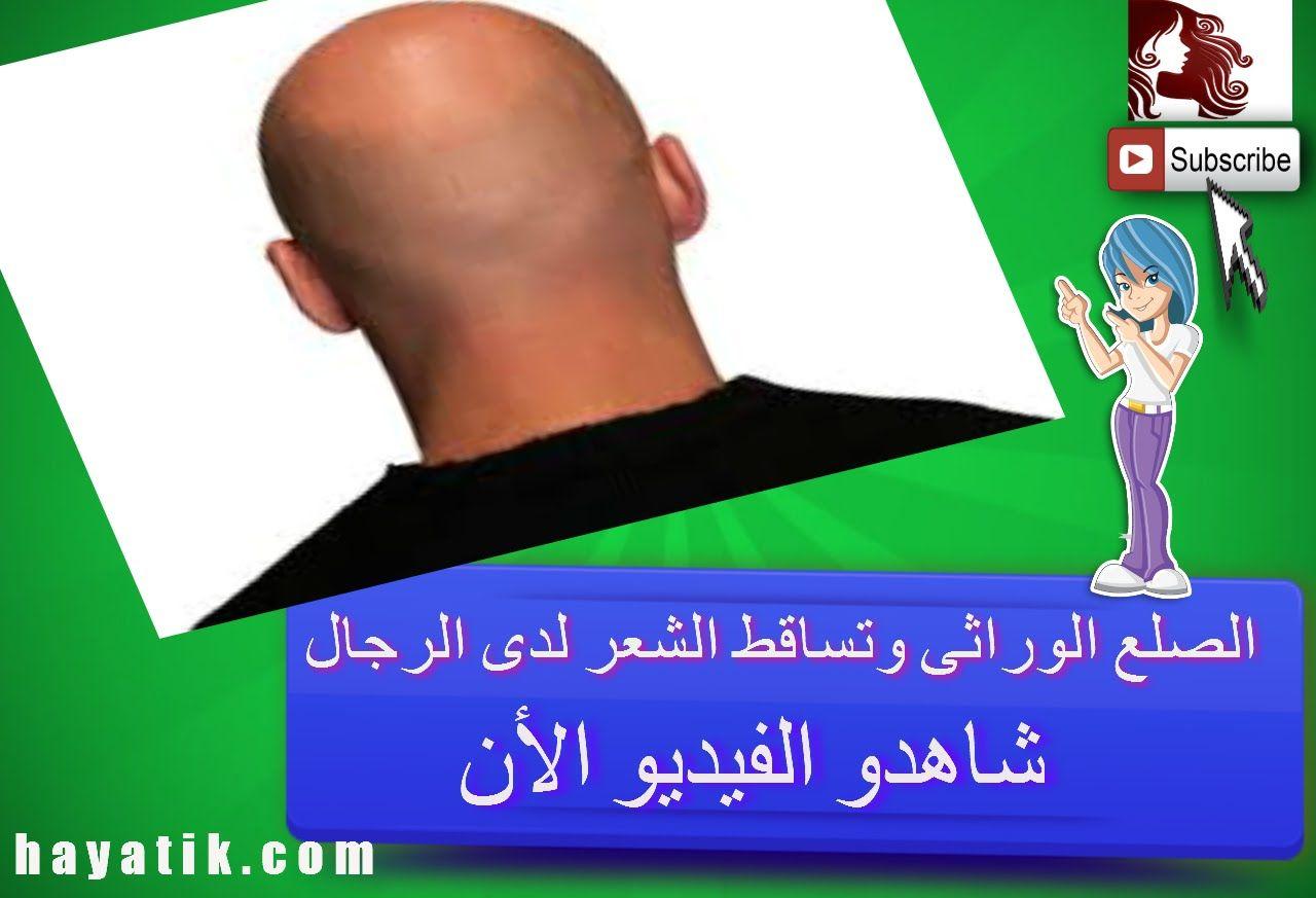 الصلع الوراثى وتساقط الشعر لدى الرجال علاج تساقط الشعر الوراثي علاج تساقط الشعر والصلع Youtube Music Content