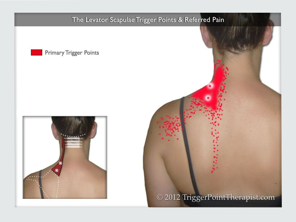 Levator -  Levator Scapula Trigger Points And -1009