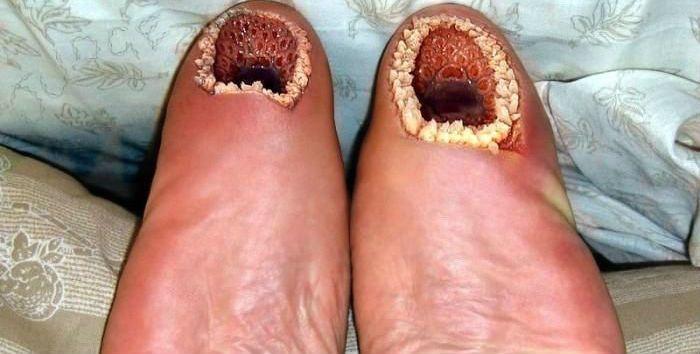 Disturbing Skin Conditions & More | GROSS!!!! | Pinterest ...