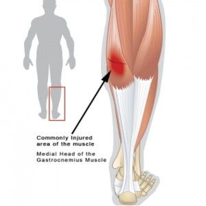 How To Get Rid Of A Pulled Calf Muscle