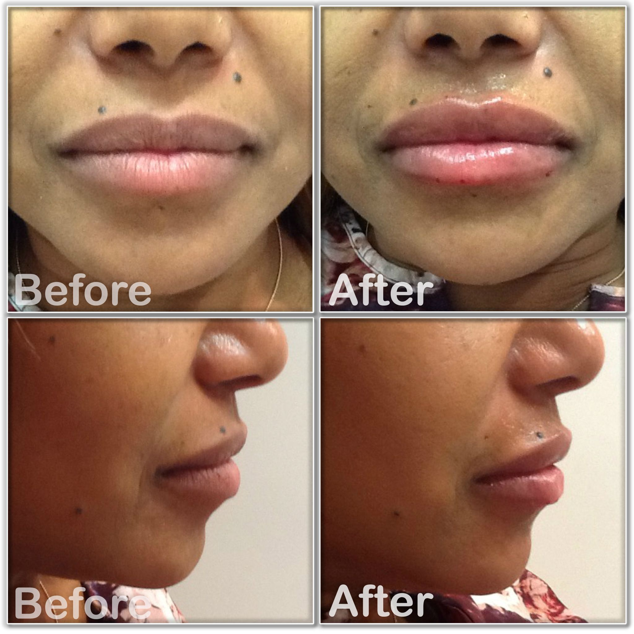 Beautiful result of lip fillers performed at our