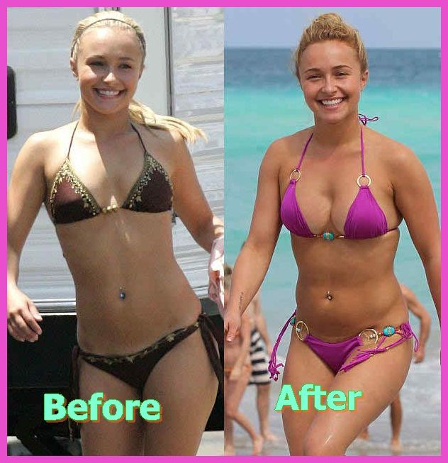 Breast enlargement before and after uk
