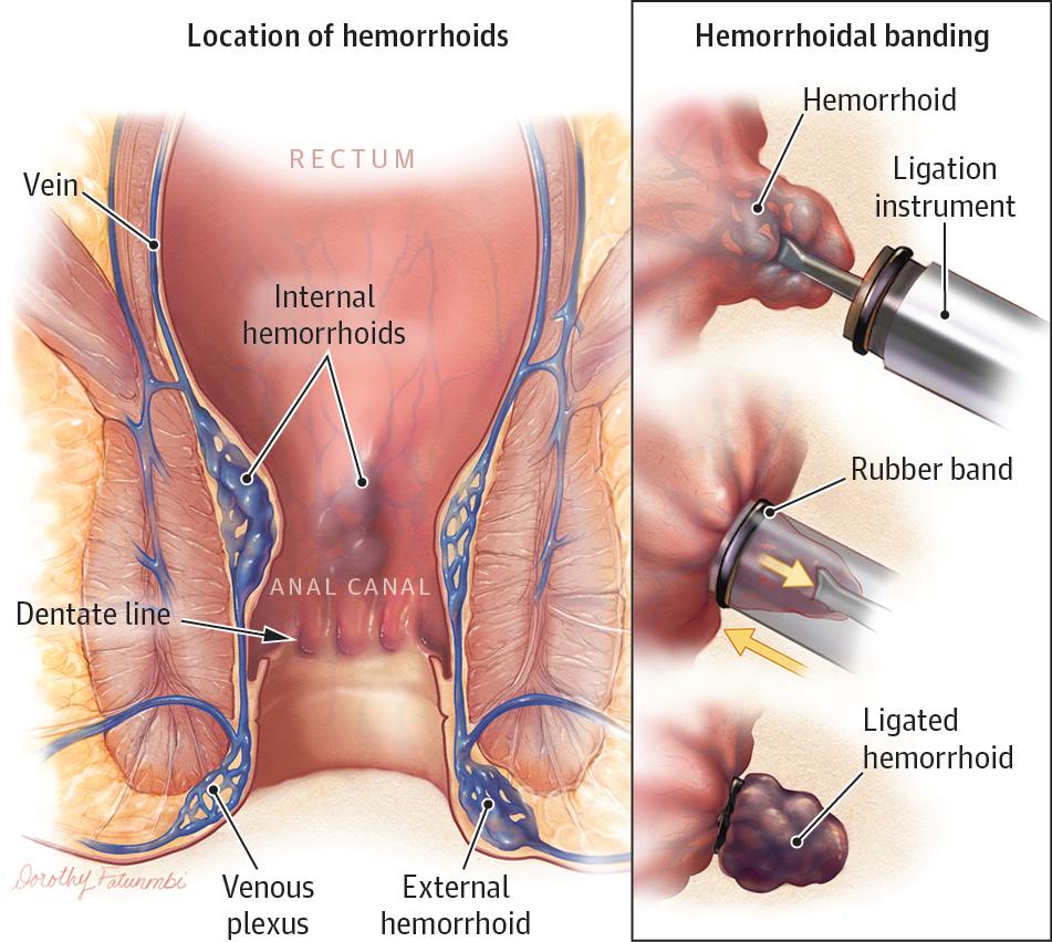 Hemorrhoids Jama 2014 312 24 2698 Doi 10 1001 Jama 2014 281 Hemorrhoids Treatment Hemorrhoids Bleeding Hemorrhoids