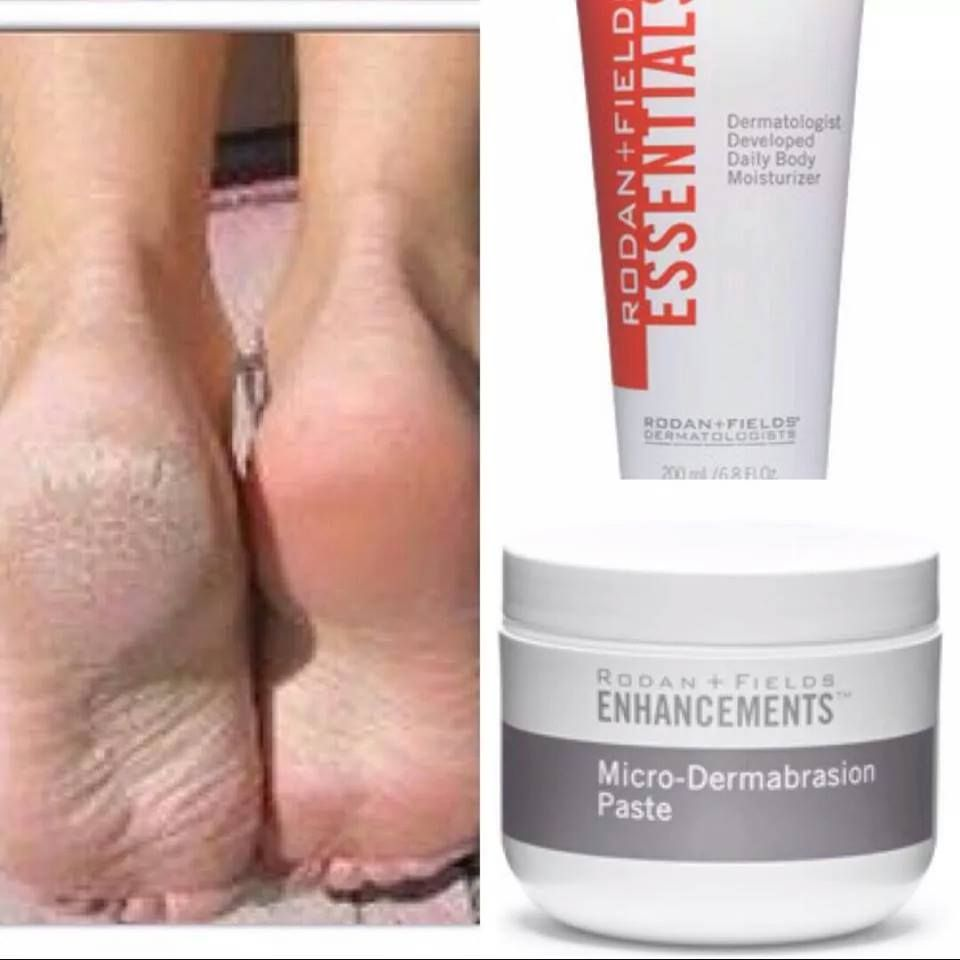 Treat Your Feet With Rodan + Fields!! Microdermabrasion Paste Moisturizer  Body Lotion!