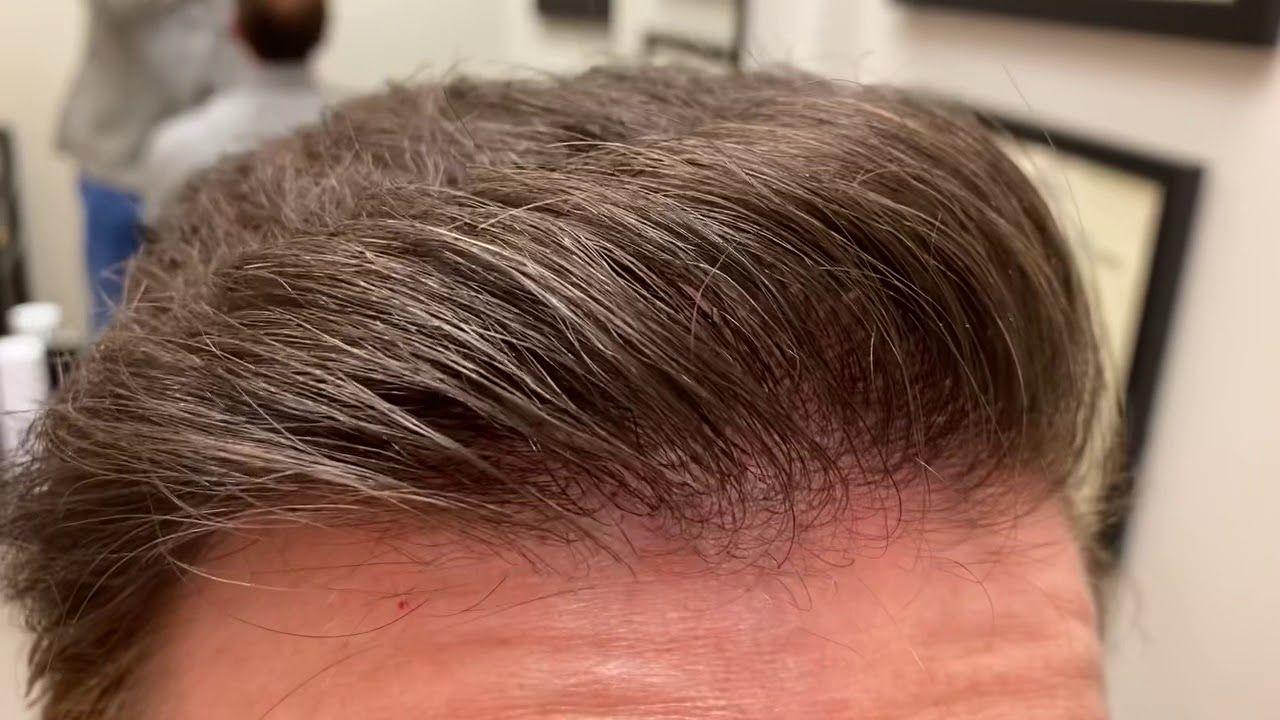 Dallas Hair Transplant CloseUp/Testimonial/Photos Hair