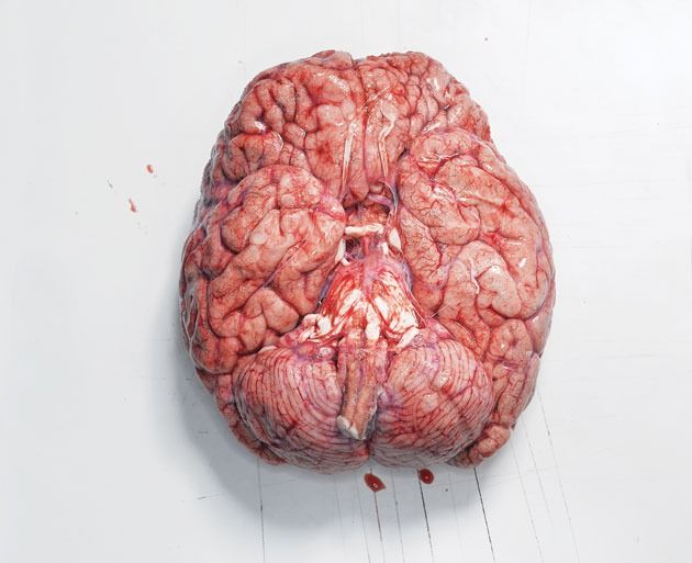 """braydaaan: """" yxxck: """" florderst: """" shawnali: """" The first time I held a human brain in Anatomy Lab I was completely speechless. I looked at my classmates expecting a similar reaction and they looked..."""