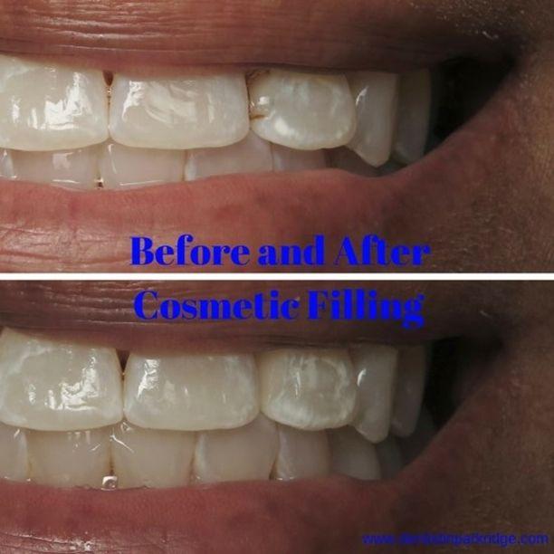 Smile Gallery Cosmetic Dentist Dentist Dentistry