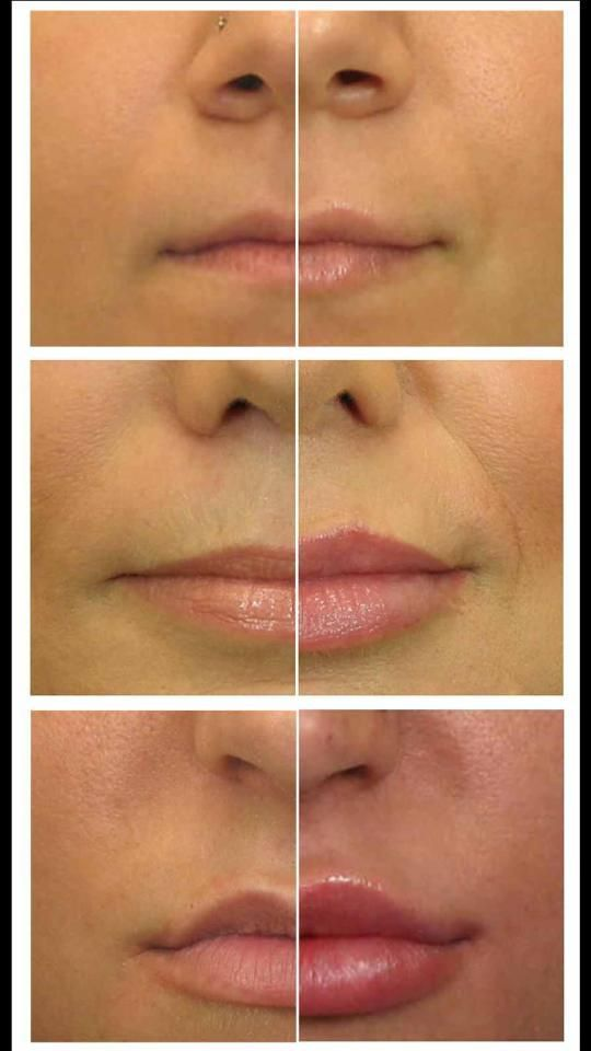 how to get bigger lips fillers affect
