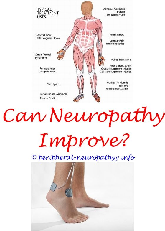 Icd 10 code for diabetes with neuropathy peripheral neuropathy icd 10 code for diabetes with neuropathy peripheral neuropathy quizletutches neuropathy neuropathy rubbing ccuart Images
