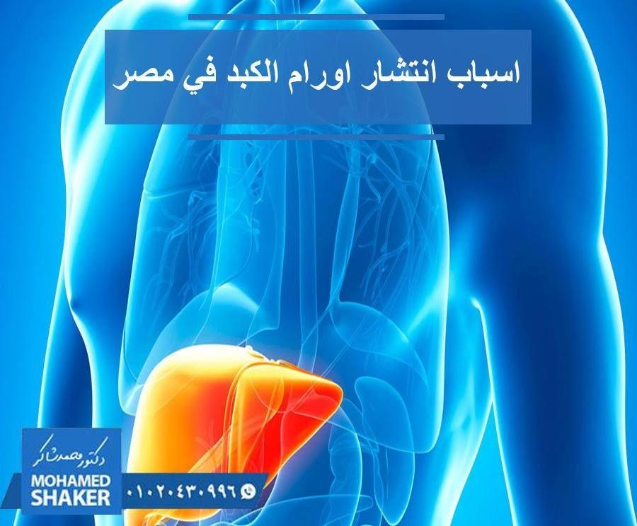 في الحقيقة أن السبب الرئيسي لسرطان الكبد في مصر هو تليف الكبد والذي ونتيجة للتليف الفيروسي وفيروس C علي وجه الخصوص وقد يتحول Novelty Lamp Lava Lamp Lamp