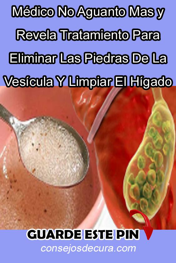 14 Ideas De Dieta Para La Vesicula Dieta Para La Vesicula Vesicula Calculos Biliares