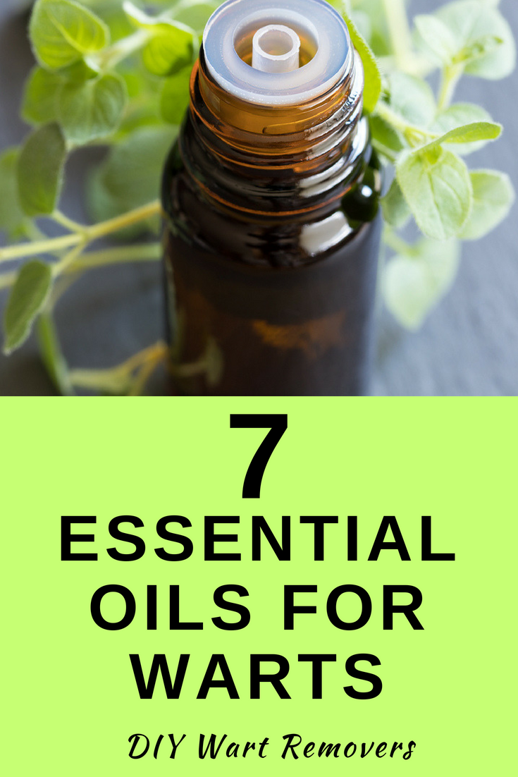 7 Essential Oils For Warts In 2020 (True Wart Kill