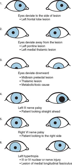 B9780323033541500122_gr2jpg (301×690) Neurology Pinterest - medical evaluation