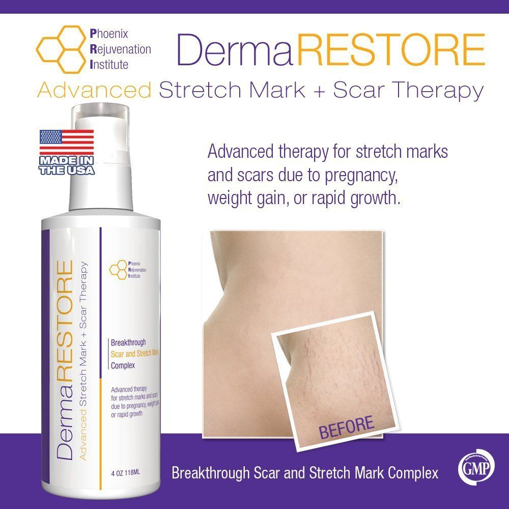 DermaRESTORE  The  Clinically Proven Stretch Mark and Scar