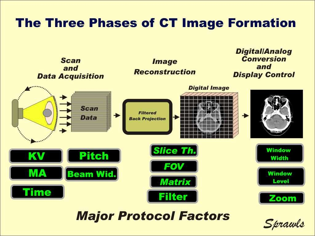 Ct Image Quality And Dose Management