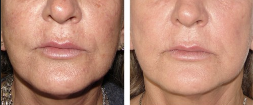 Facial Photorejuvenation Perfect Lunch Hour Facial With No Downtime Ipl Treatment Skin Care Clinic Ipl