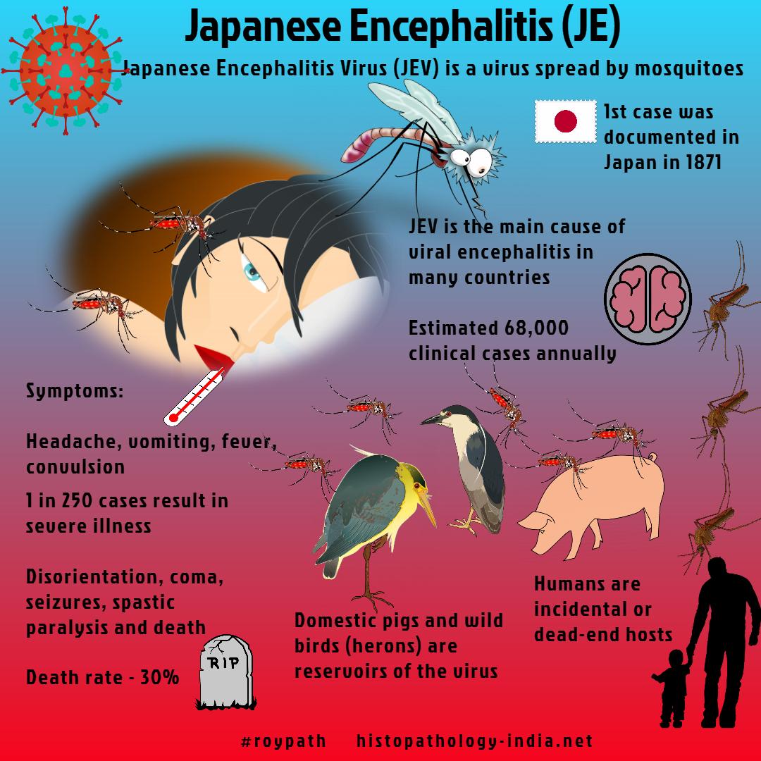 japanese encephalitis - photo #32